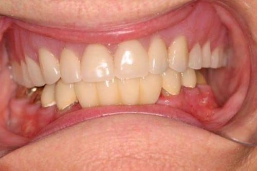 closeup of teeth with new dentures