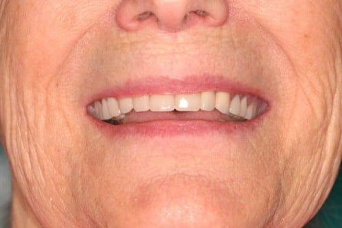 new smile thanks to complete dentures