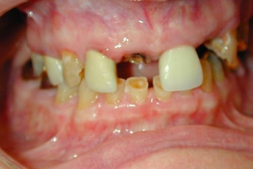 closeup of a smile with missing and decayed teeth