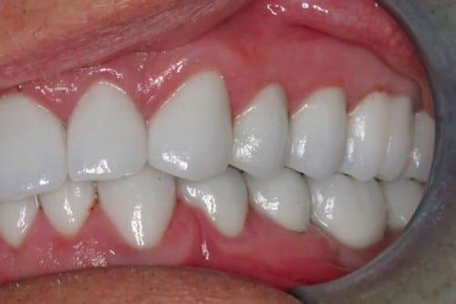 closeup of a smile with new dental crowns