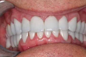 closeup of result of new dental crowns