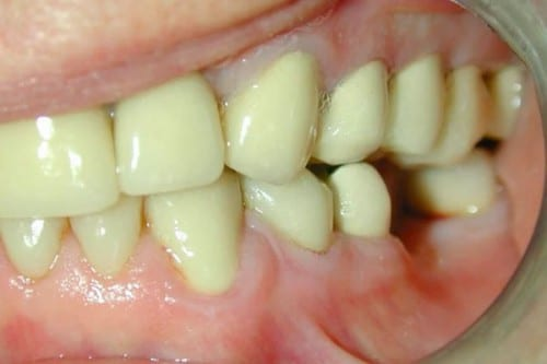 closeup of teeth showing decay and damaged smile