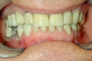 closeup of smile before new dental crowns