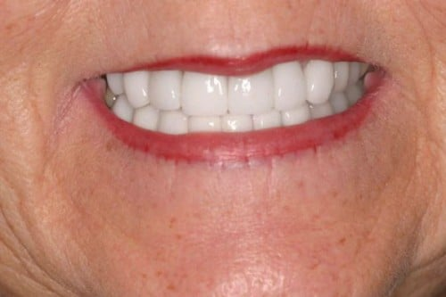 Results of a new dental crowns