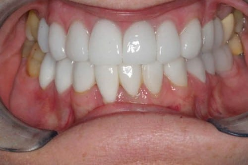 closeup of smile with new dental crowns
