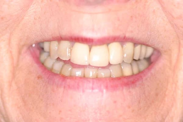 closeup of older woman with decayed, damaged teeth