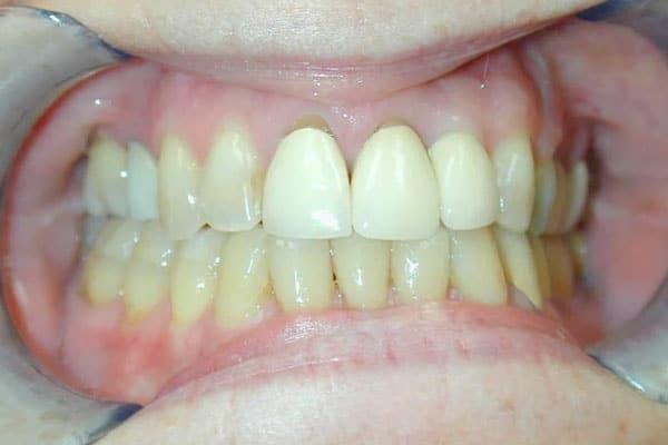 closeup of teeth before new dental crowns