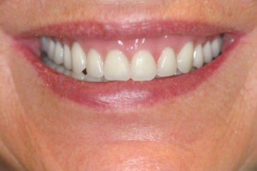 results of patient with implant supported dentures