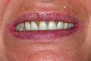 before closeup of patient wanting implant supported dentures