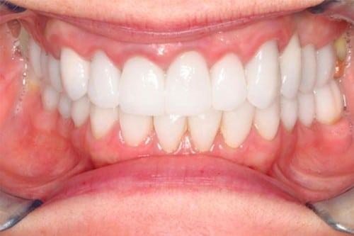 closeup of teeth showing off new dental implants