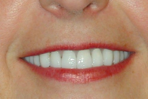 closeup of woman with new dental implants