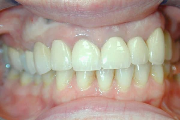 closeup of teeth before a full mouth reconstruction