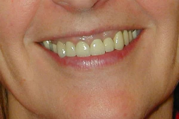 closeup of a woman's teeth before a full mouth reconstruction