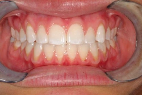 closeup of teeth after braces