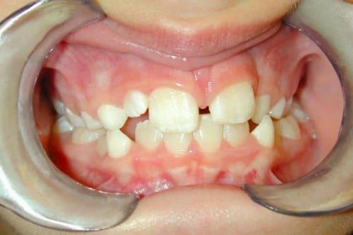 a closeup of a smile before orthodontic treatment