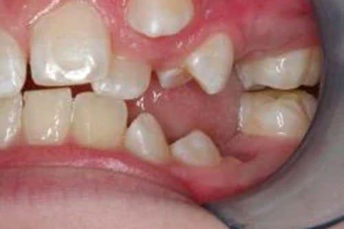 short, crooked teeth