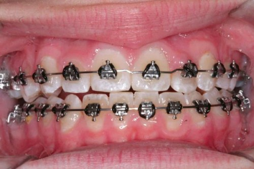 the process of getting new braces