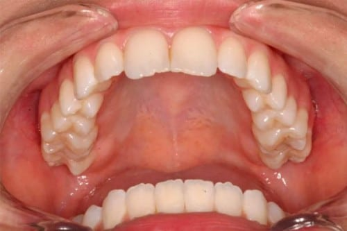new, straighter smile after braces