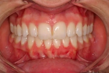 closeup of a new, straighter smile thanks to orthodontics