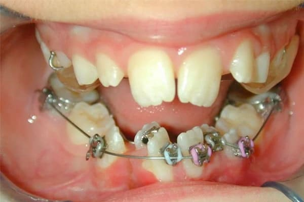 crooked smile with traditional metal braces attached