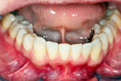 closeup of smile after orthodontics