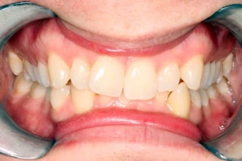 closeup of smile with crooked teeth