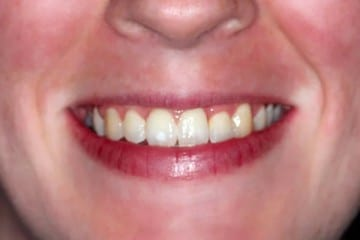 closeup of a woman's smile after orthodontics