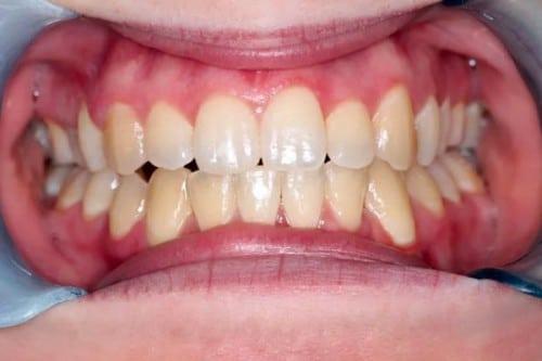 closeup of smile after braces