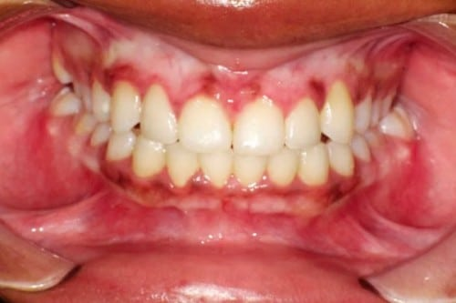 after results of new braces