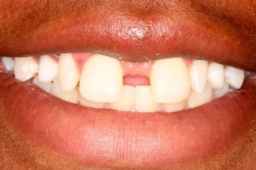closeup of a smile with large gap in between two front teeth