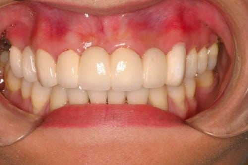 benefits of a new smile with a precision bridge