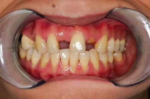 closeup of smile showing missing teeth