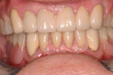 results of new dentures and porcelain dental crowns