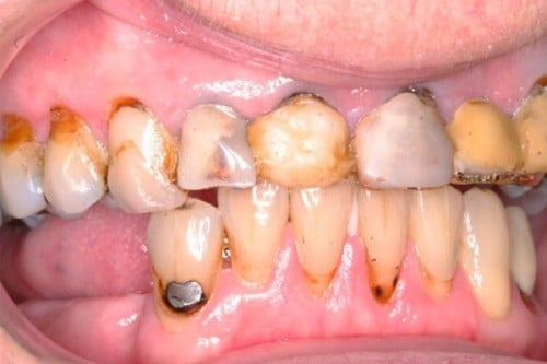 worn, decayed and damaged teeth