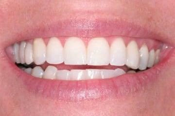 beautiful white smile