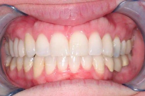 benefits of Zoom! Teeth Whitening