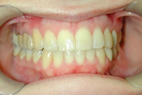 a smile before the benefits of Zoom! Teeth Whitening