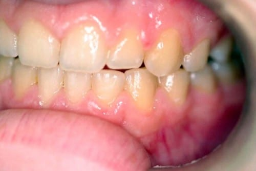 smile before tooth whitening